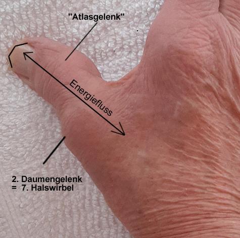 arthrosegelenke-hand